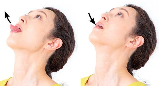 画像2: 【舌ストレス症候群の治療・改善方法】あごが小さい・舌に歯の跡がつく原因は「咀嚼不足」 めまいや滑舌の悪さ、舌がんリスクなどを招く