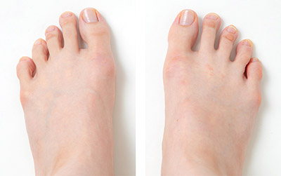 画像: 写真モデルを担当する朱香さんの足指