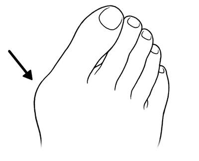 画像1: 【足指のばし(ゆびのば体操)のやり方】体の痛みは足指の変形が関係する!今井一彰医師がポイントを解説