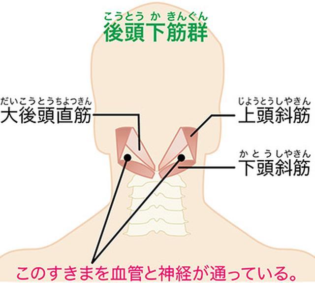 画像: 首の筋肉が腫れて神経や血管を圧迫する