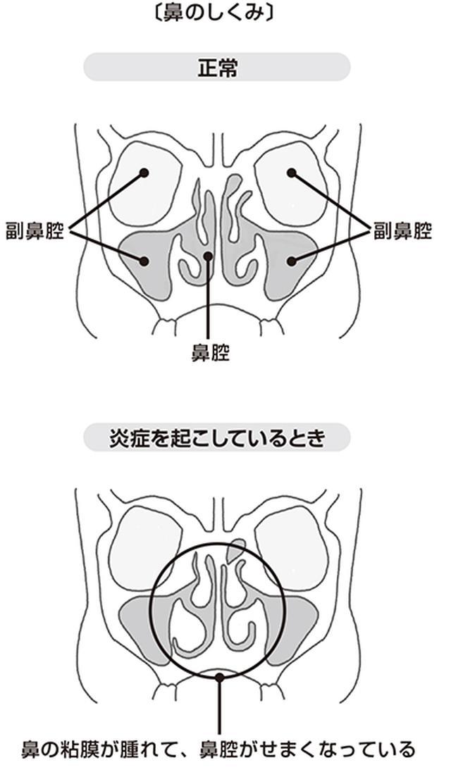 画像3: 【咳が止まらない時の対処法】痰も出る長引く咳 原因は「鼻の炎症」の可能性も