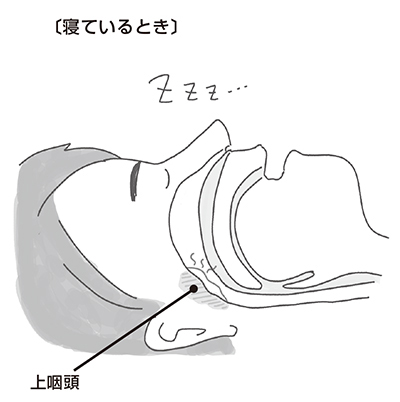 寝る と 咳 が 止まら ない