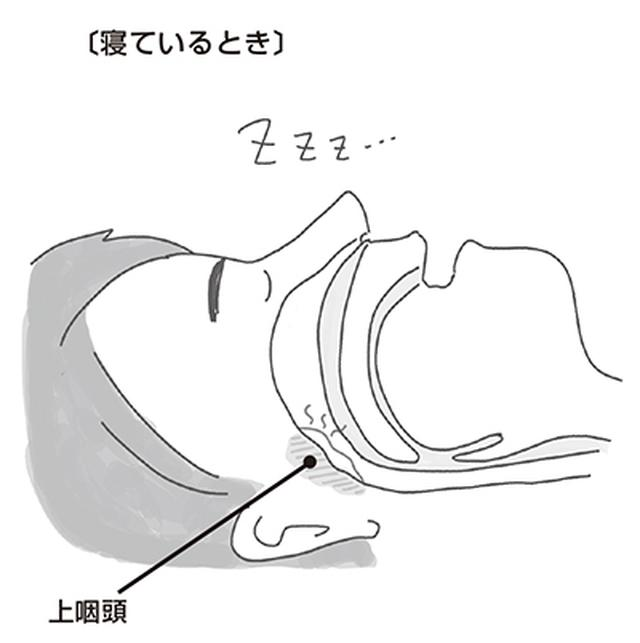 画像: 放っておくと命にかかわる「睡眠時無呼吸症候群」