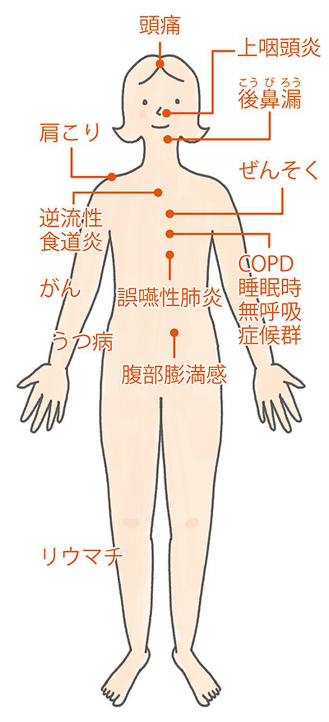 画像1: 【咳が止まらない時の対処法】痰も出る長引く咳 原因は「鼻の炎症」の可能性も