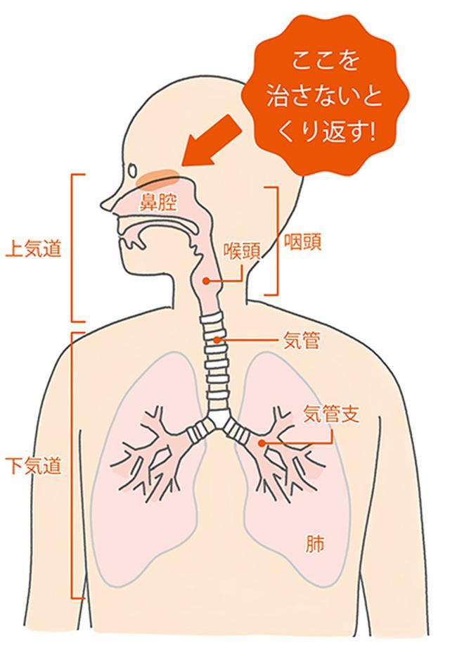 画像2: 【咳が止まらない時の対処法】痰も出る長引く咳 原因は「鼻の炎症」の可能性も