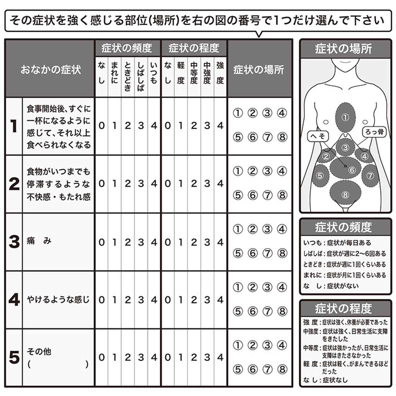 画像2: 【逆流性食道炎とは】何科を受診する?同じ症状でも炎症がない「胃食道逆流症」が増加 我慢できる胸やけでもかかりつけ医に相談を
