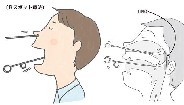 咳喘息とは】症状と基本の治療薬 そしてBスポット治療の効果について ...