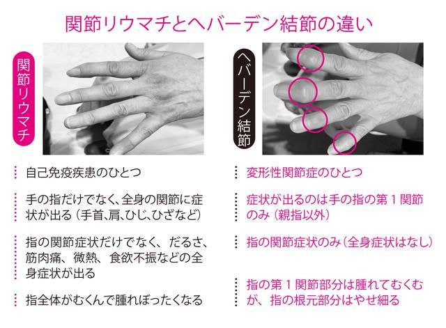指 第 二 関節 の 痛み