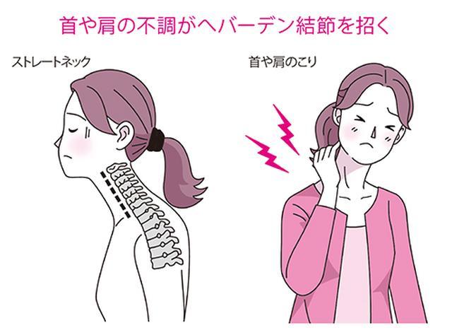 画像: 首と指は神経でつながっている
