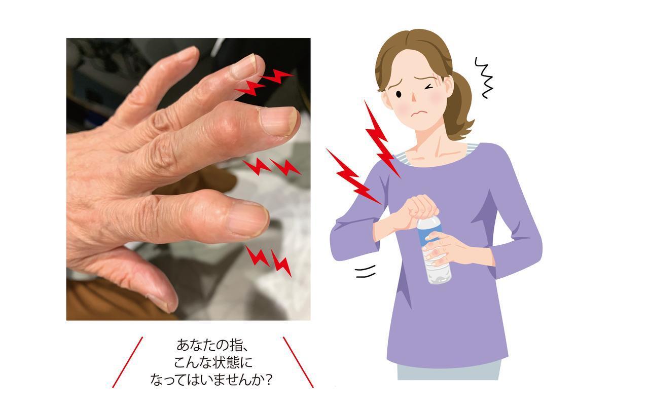 画像: 指先の痛み・腫れ【ヘバーデン結節とは】初期症状の特徴 リウマチとの違いを痛みの専門医が解説 - 特選街web