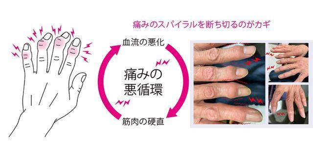 画像: 【ヘバーデン結節治療】治し方の基本 手指のマッサージと神経ブロック注射で痛みを取ることを優先 - 特選街web