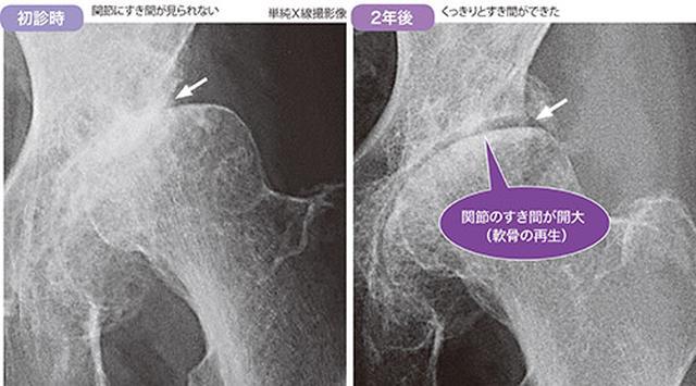 画像: ジグリングの改善例 71歳女性。内科的合併症が重篤であったため、人工関節の手術ができず、ジグリングを指導。2年後には、関節にすき間を確認できた(軟骨の再生)。