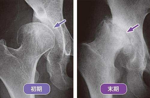 画像: 股関節症の初期と末期のレントゲン写真