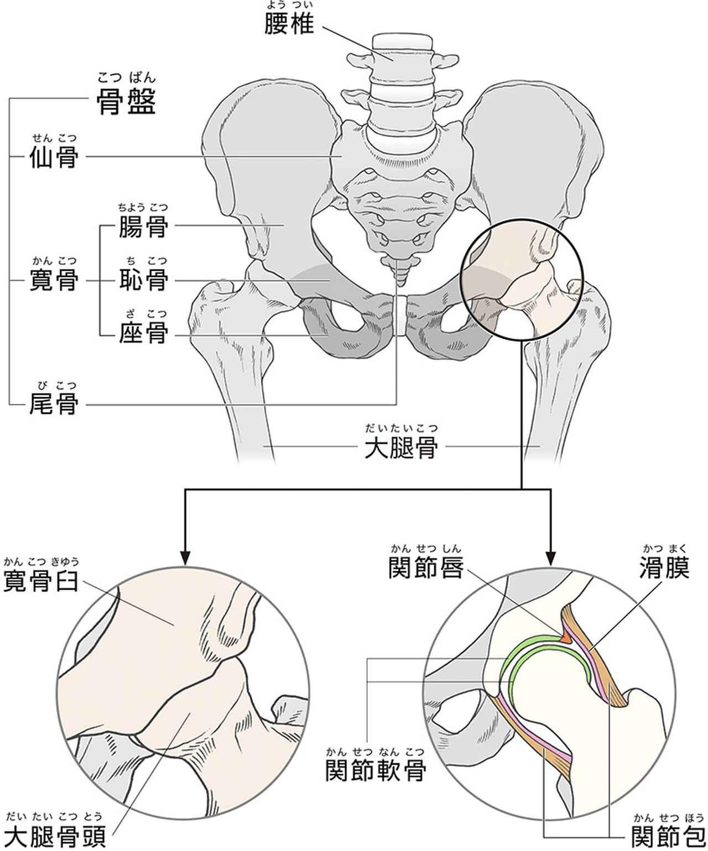 画像: 【変形性股関節症とは】痛みは関節軟骨のすり減りによる炎症で起こる 日本では40~50代の女性に多く発症