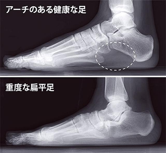 画像: 健康なアーチのある足と扁平足のレントゲン比較