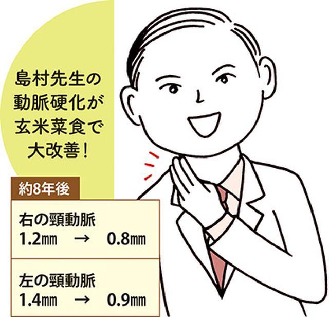 画像: 島村先生自身の頸動脈(首の動脈)を、内頸動脈エコーで2008年と2016年に測定。玄米菜食を続けた結果、プラークが大幅に減少した。