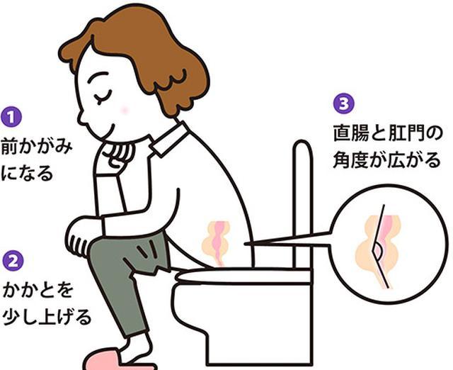 画像: 陰部を刺されるような痛みにも要注意