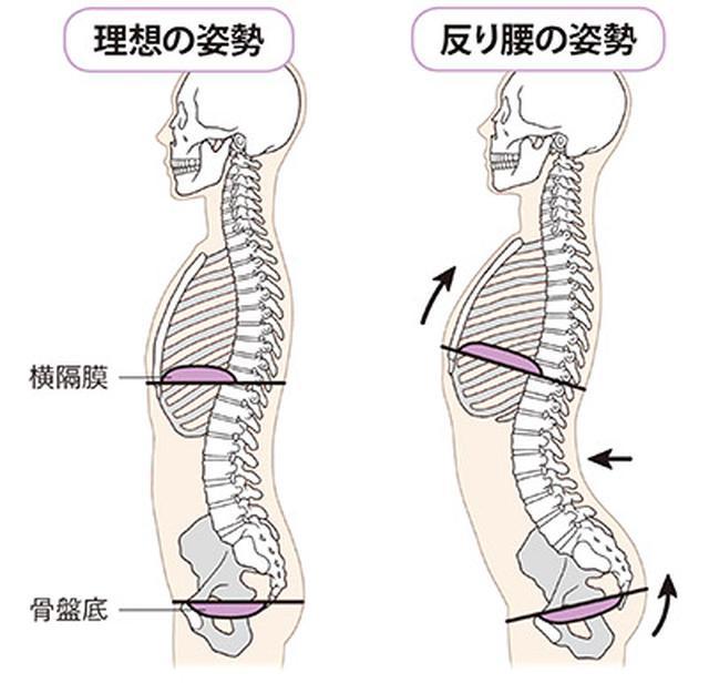 画像: 左:理想の姿勢 まっすぐな姿勢で、横隔膜と骨盤底筋群が平行な状態。これだと、息を吸ったときに横隔膜が下がり骨盤底筋群が刺激される。 右:反り腰の姿勢 反り腰になると、横隔膜が持ち上がって骨盤底筋群が斜めに傾く。すると横隔膜の動きが悪くなり、自律神経のバランスがくずれて骨盤底筋群も刺激されない。