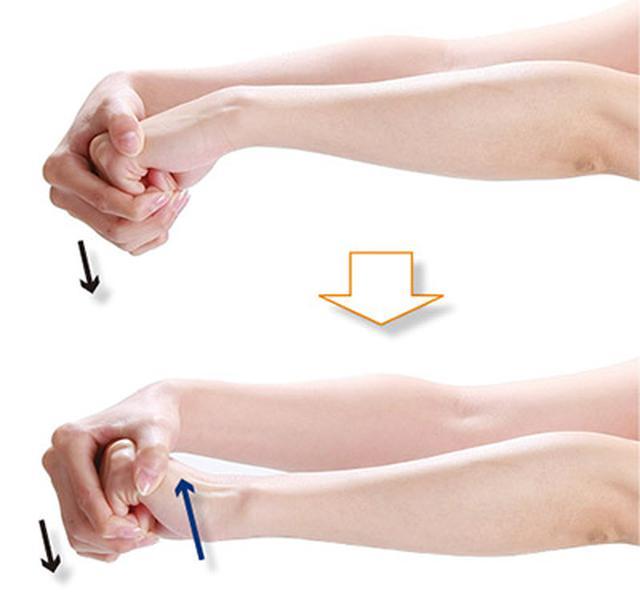 画像2: 「ひじ」「手首」どちらの腱鞘炎なのかを確認する方法