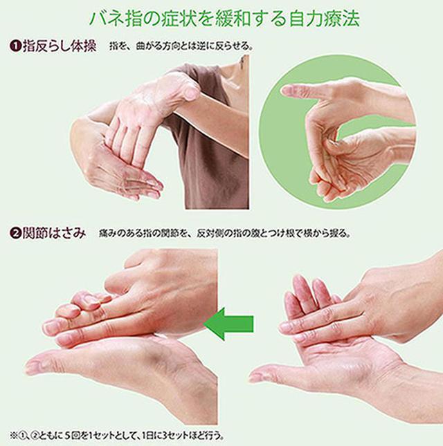 画像: バネ指が改善するストレッチのやり方
