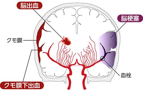 画像: 脳卒中の種類