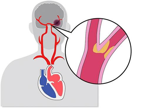 画像: 脳の比較的太い血管が動脈硬化を起こして詰まる