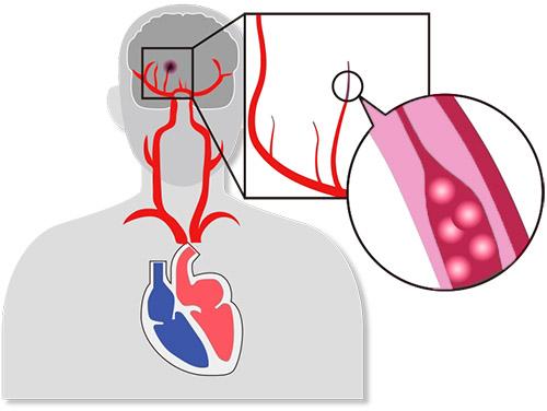 画像: 脳内の細い動脈が変性したり、閉塞したりして起こる