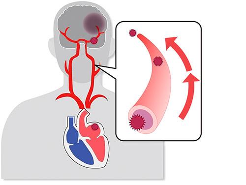 画像: 血栓が脳の血管に流れて詰まる