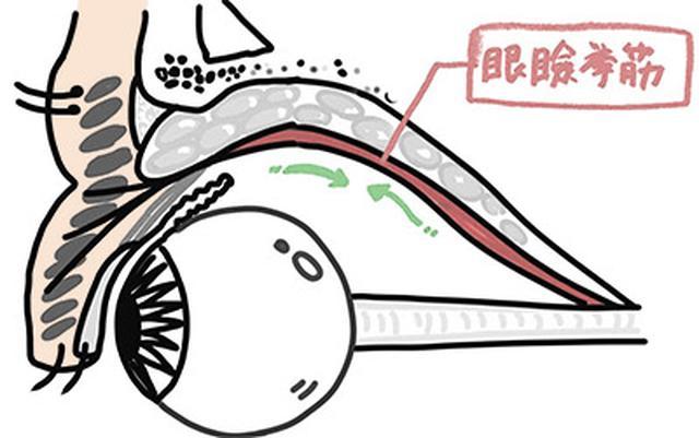 画像: 眼瞼挙筋とまぶたの縁の連結が弱り、眼瞼下垂が起こる