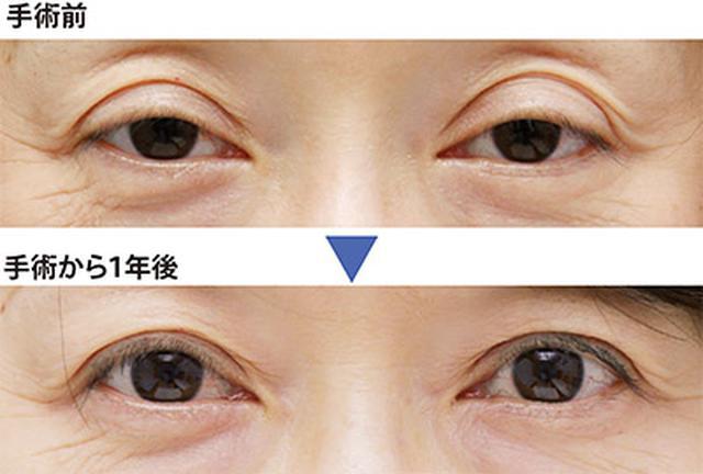 画像: 眼瞼下垂の手術でこんなに変わる!