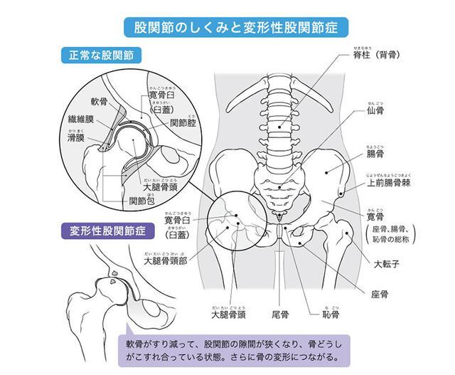 画像: 運動や生活動作の改善で症状や進行を抑えられる