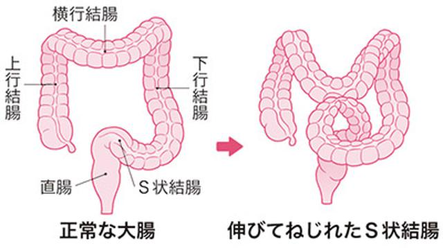 画像: S状結腸は伸びてねじれやすい!