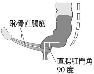 画像: 上体を立てた状態では直腸肛門角は90度。この状態では便が出にくい。