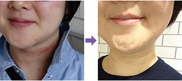 画像: (左)首周りにアトピーの症状が出ていた (右)痕も残らずキレイに治った!
