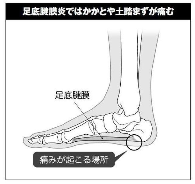 画像: 過度な負荷で足裏に炎症が起こる