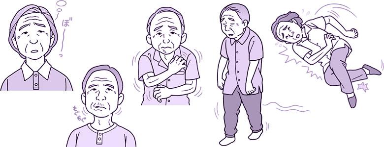 画像: 【高齢者てんかんの最新療法】認知症と間違われやすい症状も 早期発見することで大きな改善が見込める