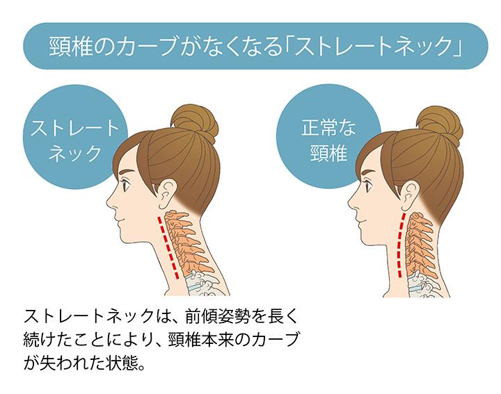 ヘルニア ストレッチ 頸椎