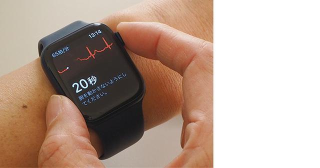 画像3: 心拍数・心電図