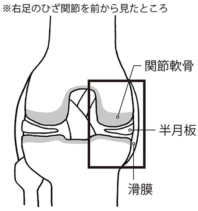 画像1: 加齢とともに軟骨がすり減り、半月板に傷ができる