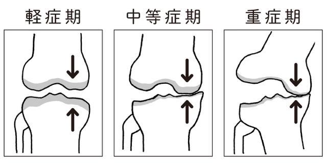 画像2: 摩耗粉が滑膜を刺激して炎症が起こる
