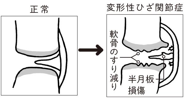 画像2: 加齢とともに軟骨がすり減り、半月板に傷ができる