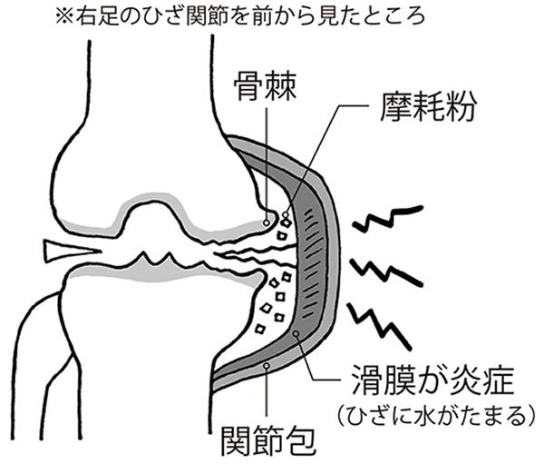 画像1: 摩耗粉が滑膜を刺激して炎症が起こる