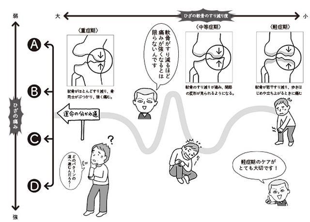 画像: 変形性ひざ関節症の進み方4つのパターン