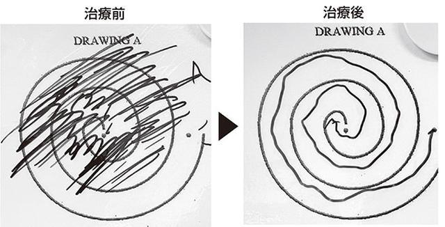 画像: 激しい手のふるえが止まり、渦巻きが書けるようになった例(経頭蓋集束超音波治療)
