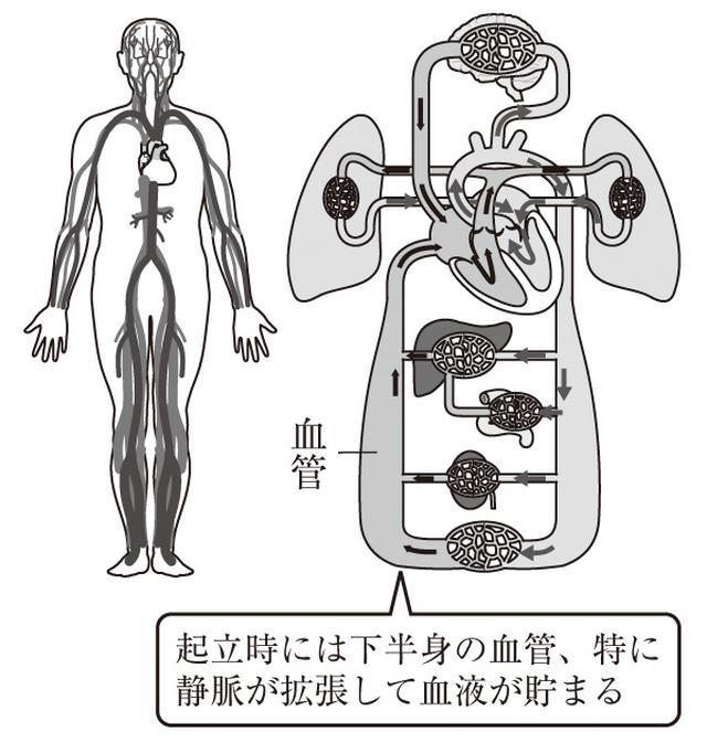 画像: 起立すると血液が下半身に移動する。