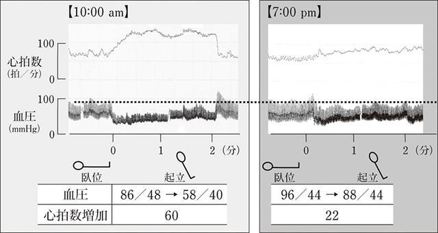 画像: 朝(左)は血圧が低く心拍数の増加が多い。夜(右)は朝に比べ血圧が高く心拍数の増加が少ない。