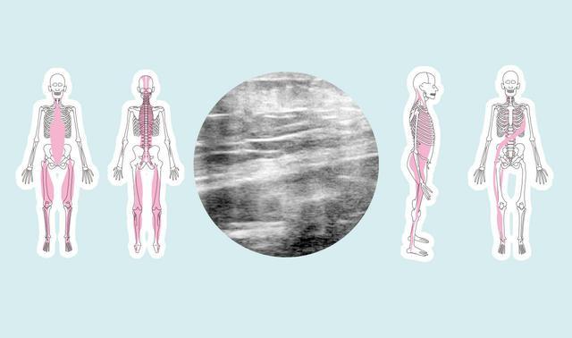 画像: 【ファシアとは】原因不明の痛みに効果 ハイドロリリースとトリガーポイント療法との関係 筋膜との違いも解説 - 特選街web