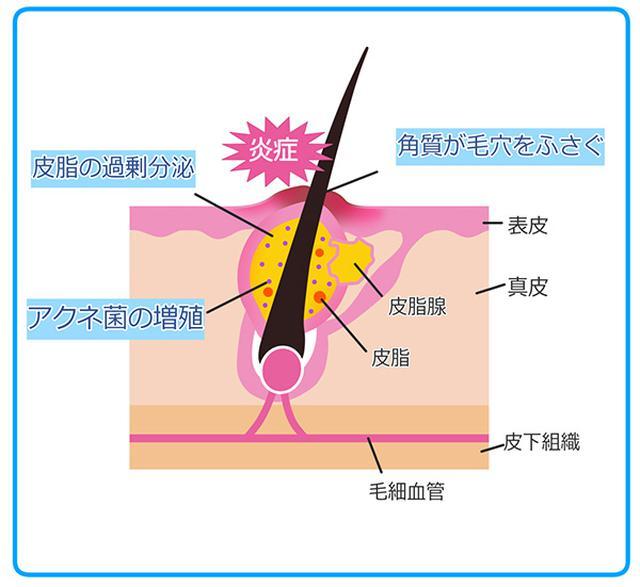 画像: 毛穴がふさがれる→皮脂がたまる→菌が増殖→炎症。 (イラストAC)