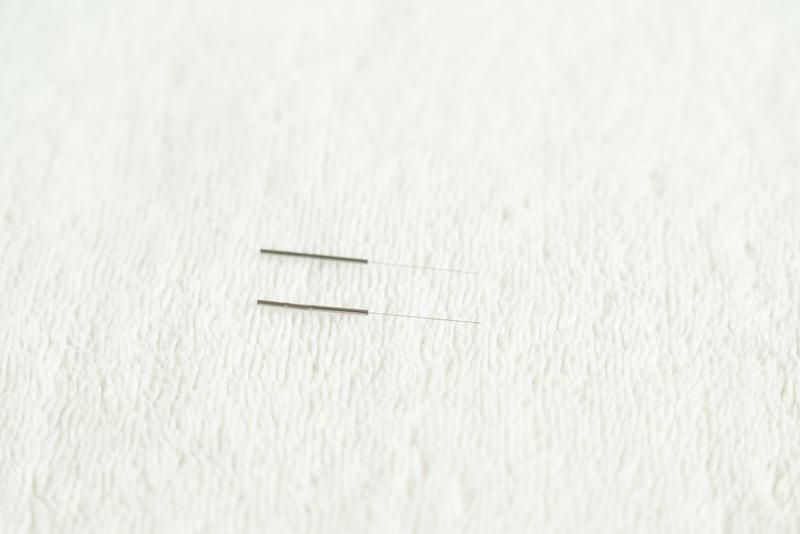画像: 使用する鍼は「八分長柄鍼(はちぶちょうへいしん)」という、0.16ミリの鍼。「髪の毛よりも少し太い程度です」(瀬戸先生)