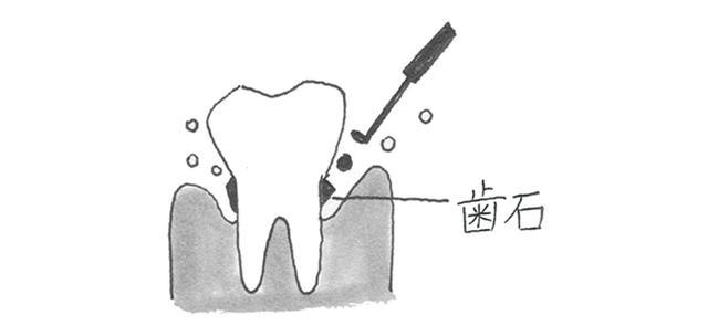 画像: 3カ月ごとに歯科医での歯石ケアを